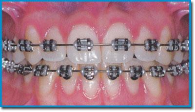 ortodontia_03